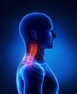 Neckpain-chirporactor-posture-sydney-northsydney-crowsnest