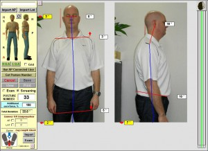 before-Chiropractic-sydney-posture-chiropractor-northsydney