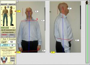 after-Chiropractic-sydney-posture-chiropractor-northsydney