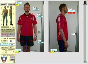 before-Chiropractic-sydney-posture-chiropractor-crowsnest