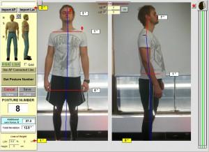 after-Chiropractic-sydney-posture-chiropractor-crowsnest