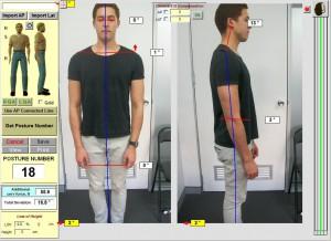 Spineandhealh-sydney-chirporactor-lowpackpain-shoulderpain