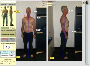 Spineandhealth-chiropractor-sydney-posture-lowerbackpain