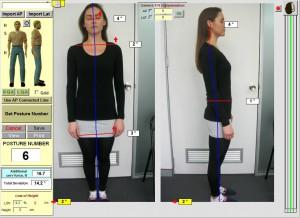 chiropractor-sydney-crowsnest-posture-spineandhealth