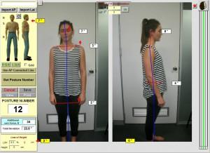 chiropractor-posture-crowsnest-sydney-spineandhealth