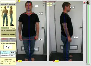 chiropractor-sydney-crowsnest- posture
