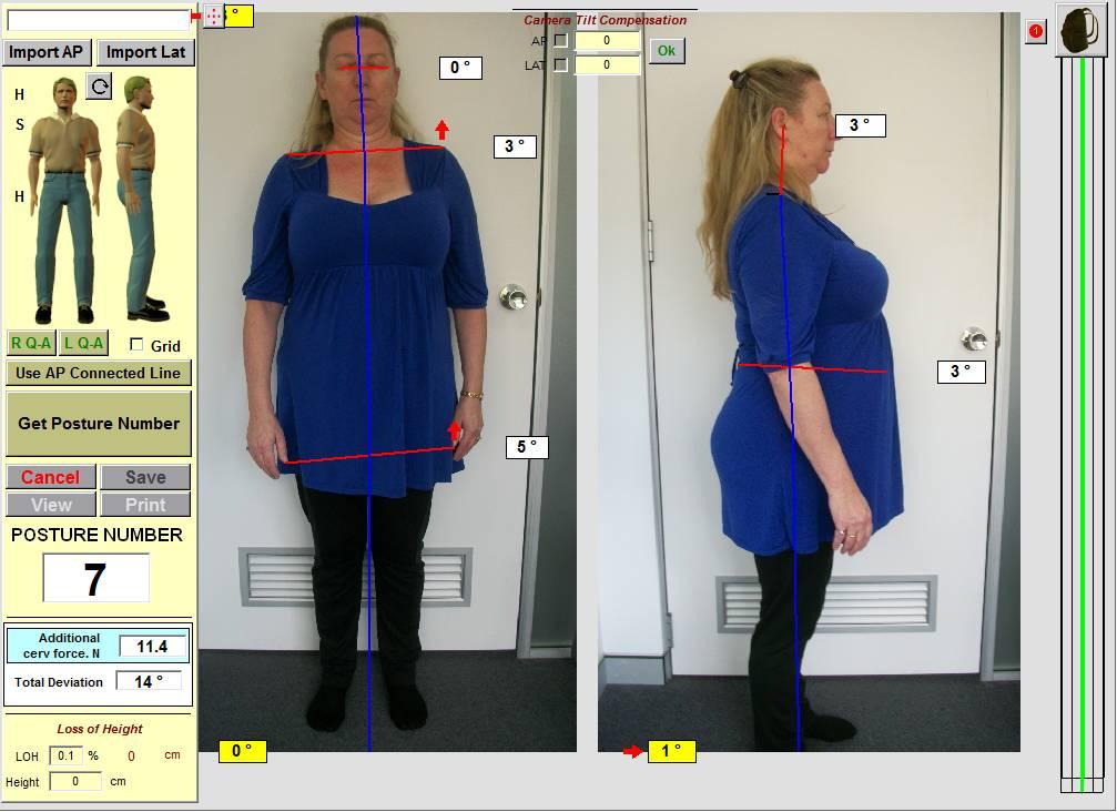 chiropractor-spineandhealth-crowsnest-posture