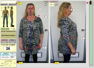 spineandhealth-crowsnest-postue-chiropractor