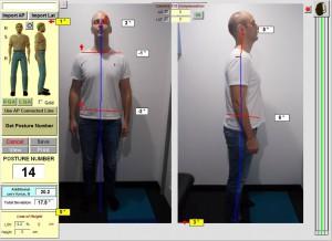 Chiropractor-lowerbackpain-northsydney-spineandhealth-posture