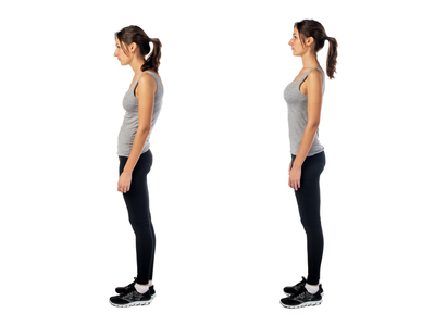 Poorposture-spineandhealth-sydney-crowsnest-northsydney
