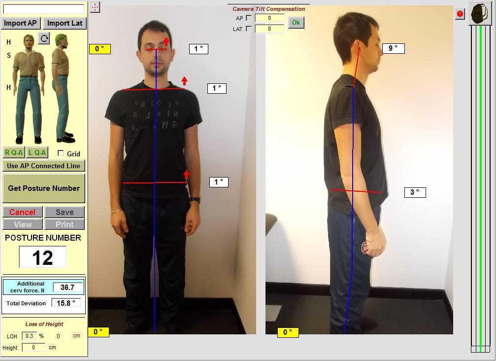 Chiropractic-lowerbackpain-northsydney-crowsnest-spineandhealth-posture