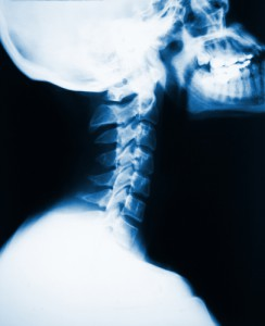 xray-neck-spineandhealth-crowsnest-northsydney-chiropractor