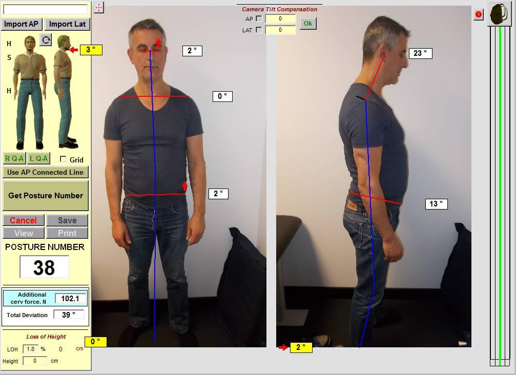 Northsydney-chiropractic-posture-spineandhealth-sydney