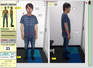 low back pain case study before posture photo