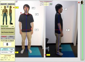 low back pain case study after posture photo